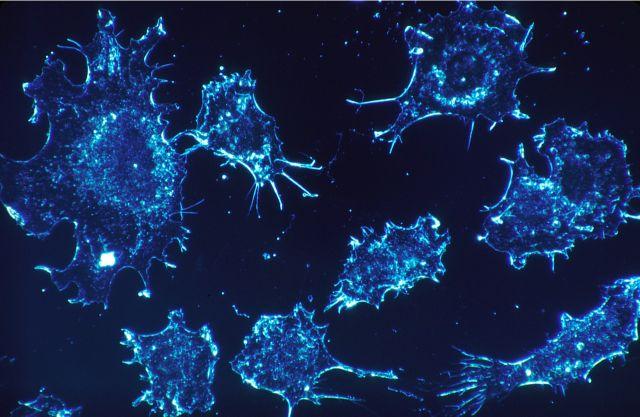 Doctors Found A Fantastic Method To Destroy Cancer Cells